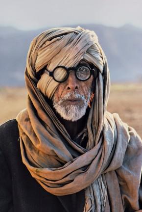 PAKISTAN. Baluchistan. 1981. Afghan refugee with damaged eye.